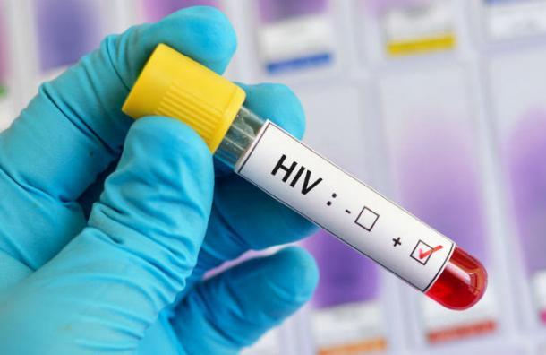 Más de 70 países podrían quedar sin fármacos contra el VIH